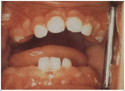 Primary Tooth Eruption | Smiles for Life Oral Health