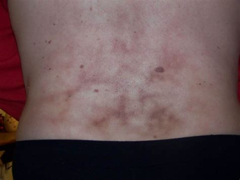 Strange bruising and pain in my lower back at Ask CureZone