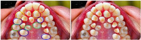 Does This Picture Show a Case of Hyperdontia? | Snopes